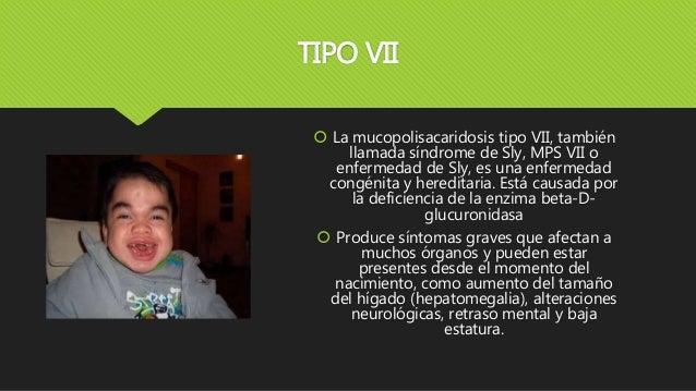 TIPO VII  La mucopolisacaridosis tipo VII, también llamada síndrome de Sly, MPS VII o enfermedad de Sly, es una enfermeda...