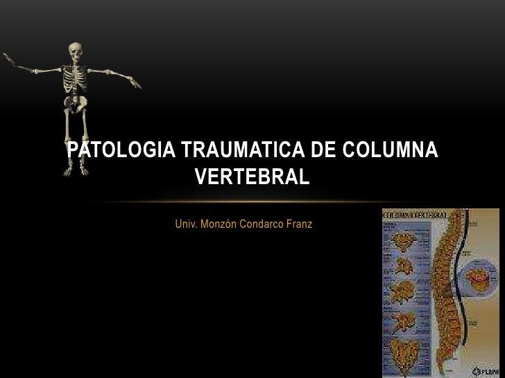 Univ. Monzón Condarco Franz<br />PATOLOGIA TRAUMATICA DE COLUMNA VERTEBRAL<br />