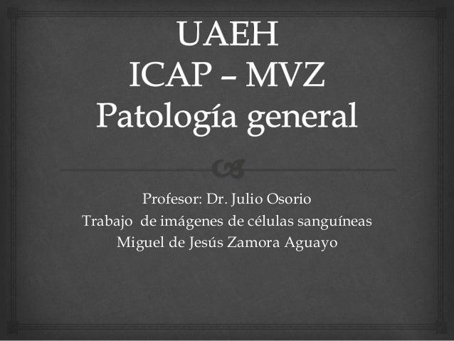 Profesor: Dr. Julio Osorio Trabajo de imágenes de células sanguíneas Miguel de Jesús Zamora Aguayo