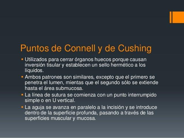 Punto de Connell