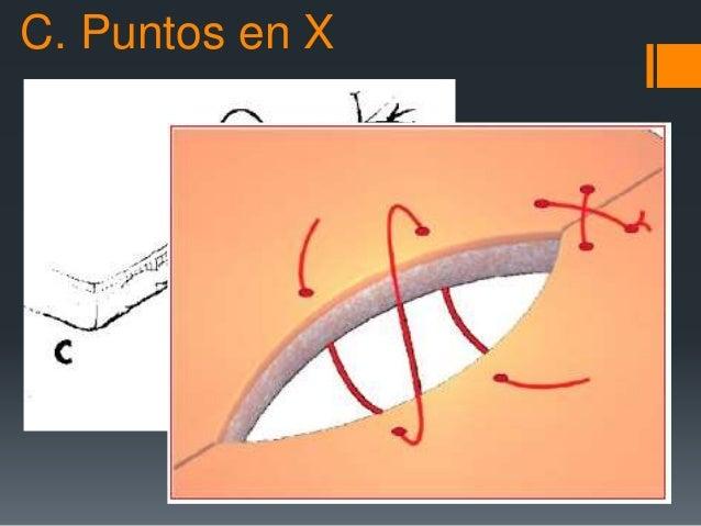 C. Puntos en X