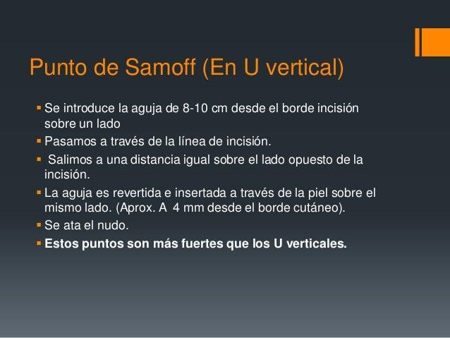 Punto de Samoff (En U vertical)  Se introduce la aguja de 8-10 cm desde el borde incisión sobre un lado  Pasamos a travé...