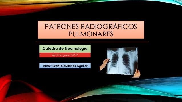 """PATRONES RADIOGRÁFICOS PULMONARES Catedra de Neumología Autor: Israel Gavilanes Aguilar 6to Año grupo 15 """"A"""""""