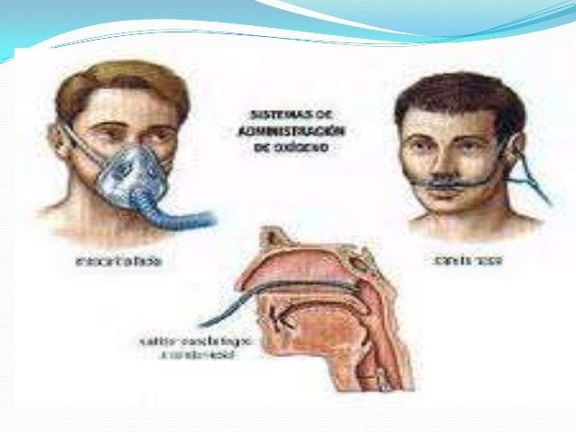 Cuidado del paciente en ventilador. Objetivos de la Ventilación Mecánica.  Mejorar la ventilación alveolar.  Garantizar ...