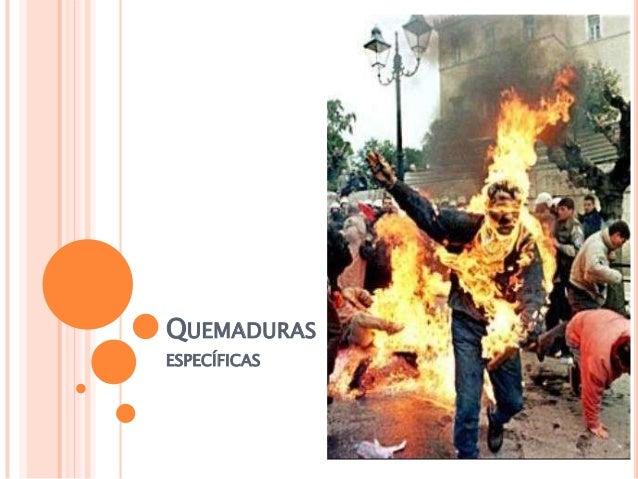 QUEMADURAS ESPECÍFICAS