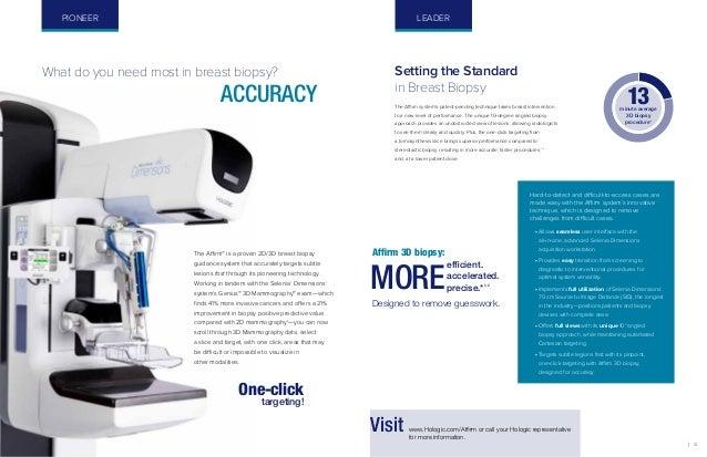 3D Mammography Q & As