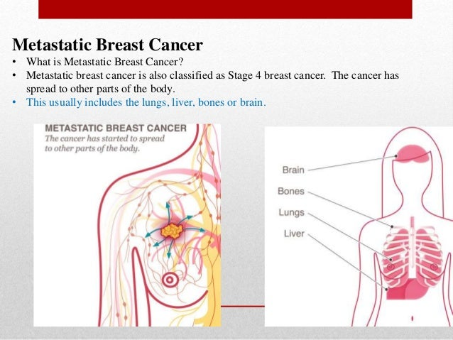 what is the most common site for breast cancer