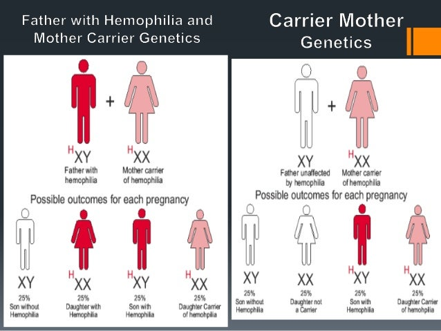 a summary of the hemophilia a genetic disorder Case summary answers examining a person's dna for genetic disorders if bob carried the hemophilia gene it would be on his x chromosome and would be expressed.