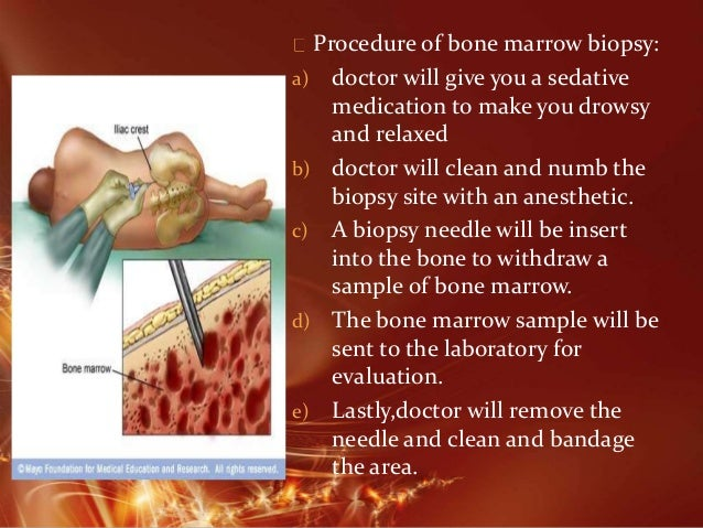 Bone Marrow Aspiration Surgical Technique - Zimmer Biomet