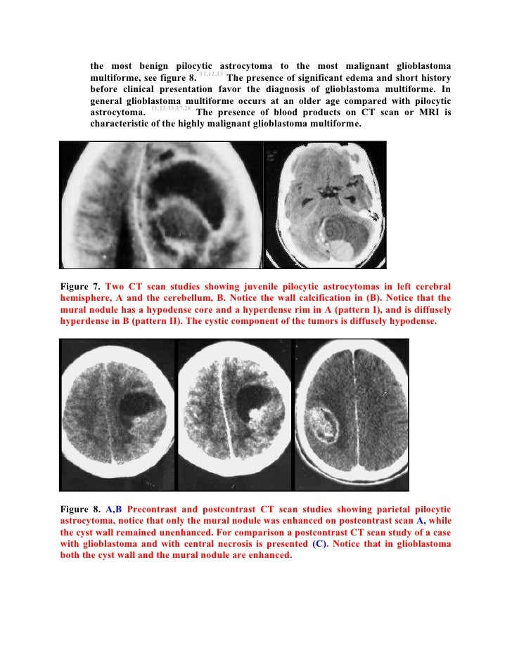 Astrocytoma In Adults 60