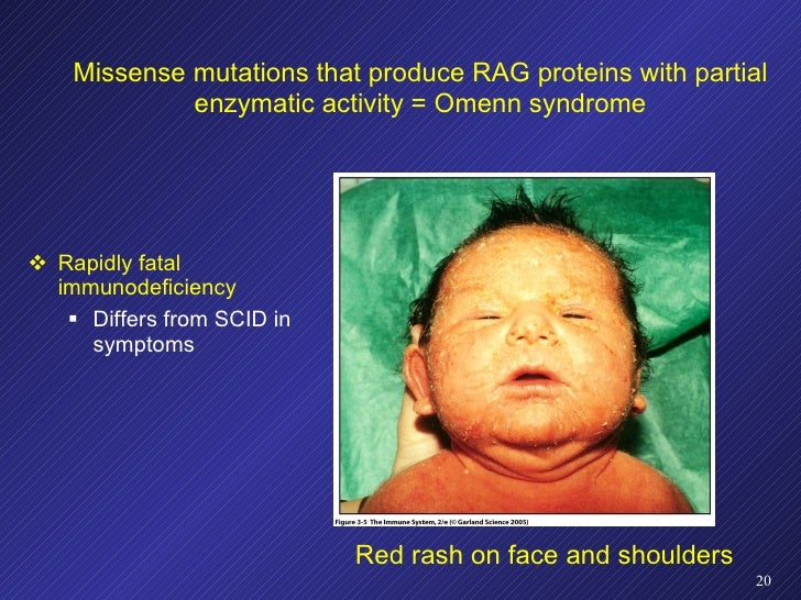 Missense mutations that produce RAG proteins with partial enzymatic activity = Omenn syndrome <ul><li>Rapidly fatal immuno...