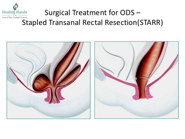 Starr Surgery For Ods Defecography In Pune Healing