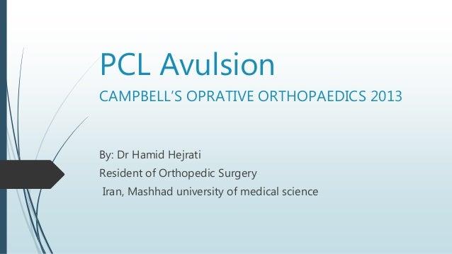 PCL Avulsion CAMPBELL'S OPRATIVE ORTHOPAEDICS 2013 By: Dr Hamid Hejrati Resident of Orthopedic Surgery Iran, Mashhad unive...