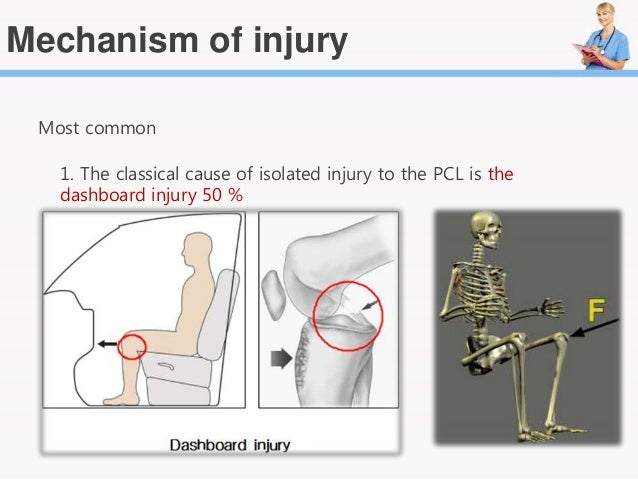 ACL Injury : Anterior Cruciate Ligament sprain