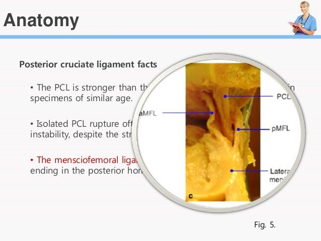 Posterior Cruciate ligament reconstruction, By Emad M. Qasem
