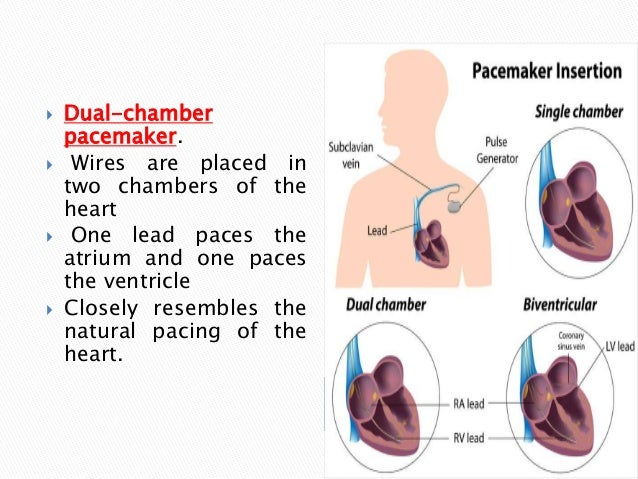 Single vs dual chamber pacemaker