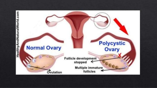 low sex hormone binding globulin pcos pregnancy in Moncton
