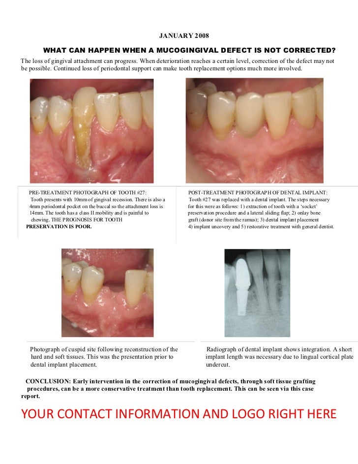 JANUARY 2008         WHAT CAN HAPPEN WHEN A MUCOGINGIVAL DEFECT IS NOT CORRECTED?The loss of gingival attachment can progr...