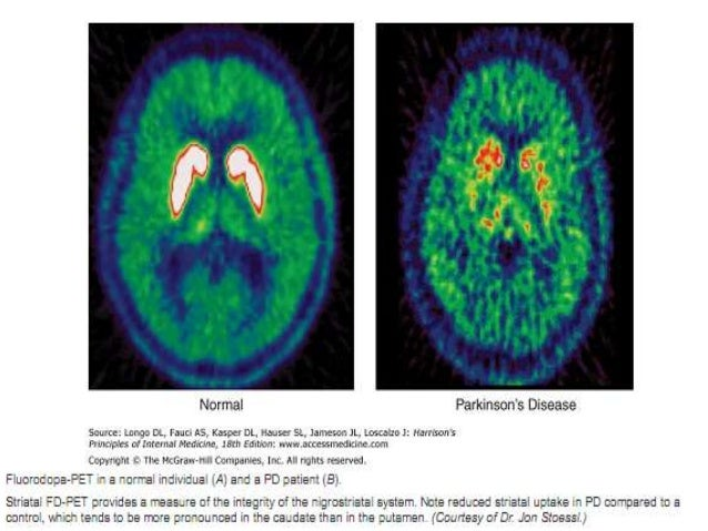 hypothalamus gains admittance Hypothalamus is most important area for integration of behavior with autonomic (eg rats with ventromedial lesions gain weight for while at time of admission.