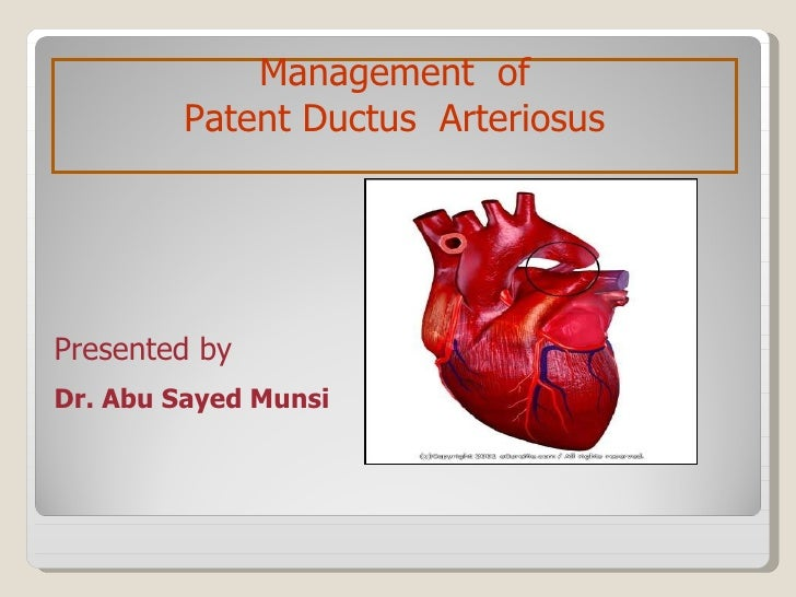 Dr. Abu Sayed Munsi Management  of Patent Ductus  Arteriosus Presented by