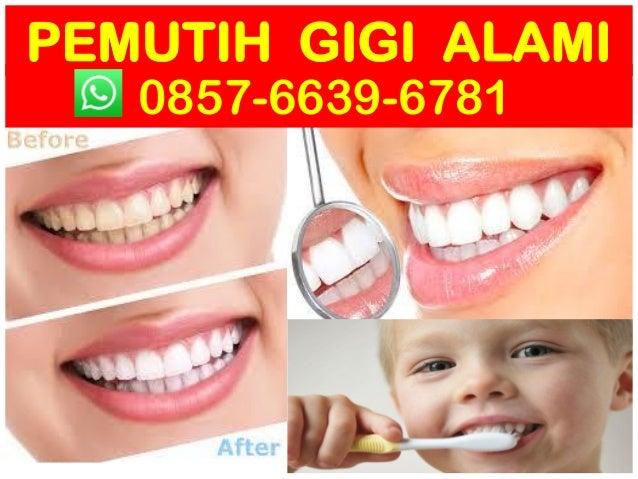 Hub 0857 6639 6781 Wa Obat Memutihkan Gigi Dengan Cepat Produk Pe