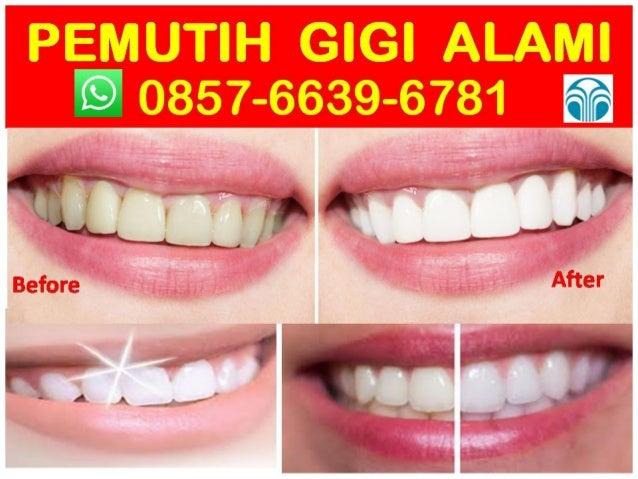 Distributor 0857 6639 6781 Wa Cara Memutihkan Gigi Alami Dan Perma