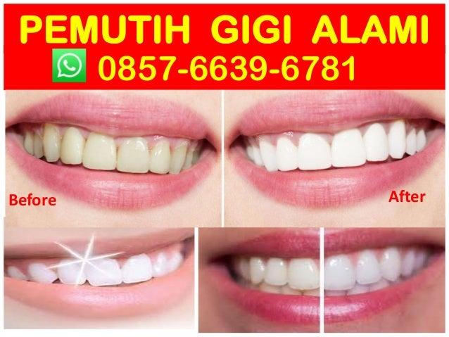 Hub 0857 6639 6781 Wa Produk Pemutih Gigi Di Guardian Obat Memuti