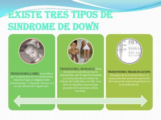 Pdf sindrome d down 1 for Tipos de mobiliario urbano pdf