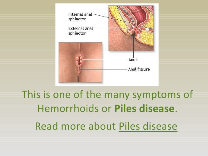 piles disease symptoms causes and treatments