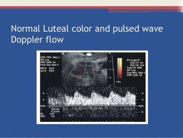 Bild 1 - PowerPoint PPT Presentation