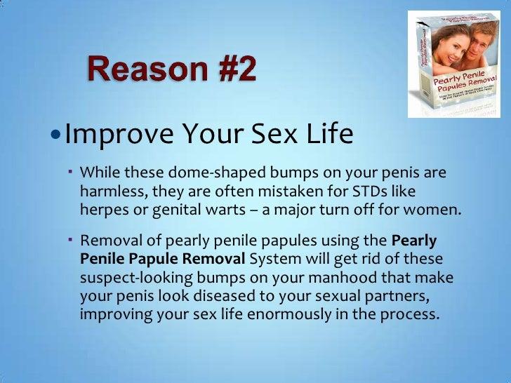 Pearly penilecancer penis papules — 1