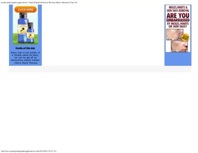 pearly papules removal the fast home alternative cure