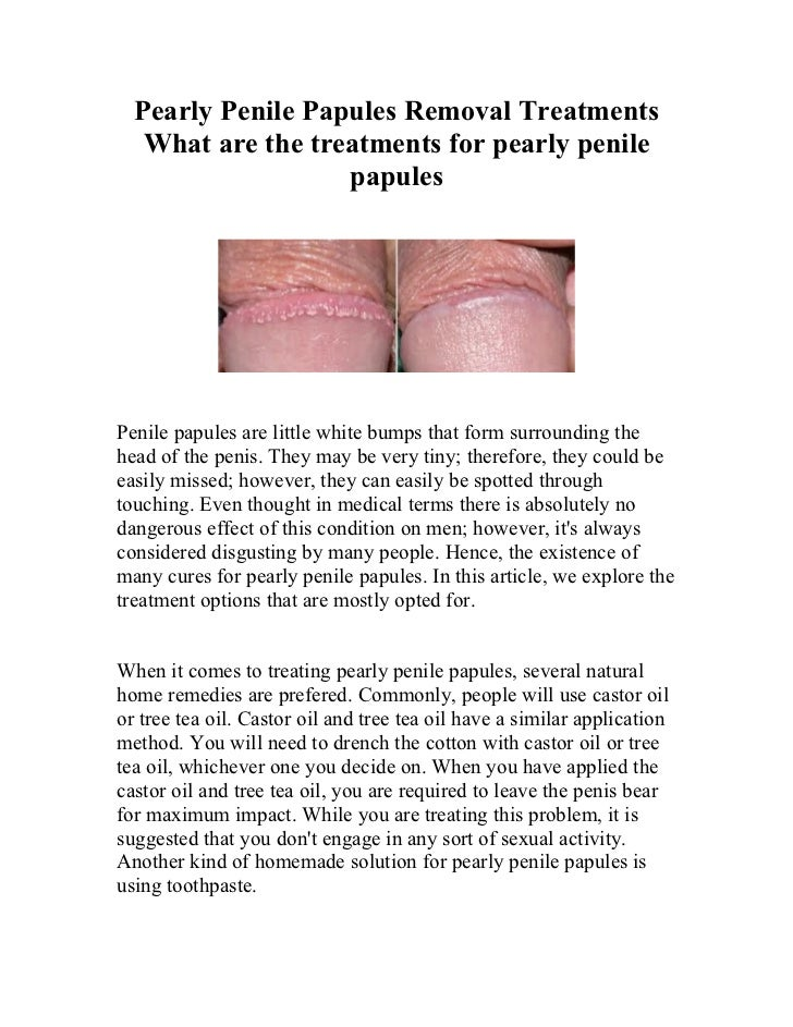 How do you get rid of pearly penile papules