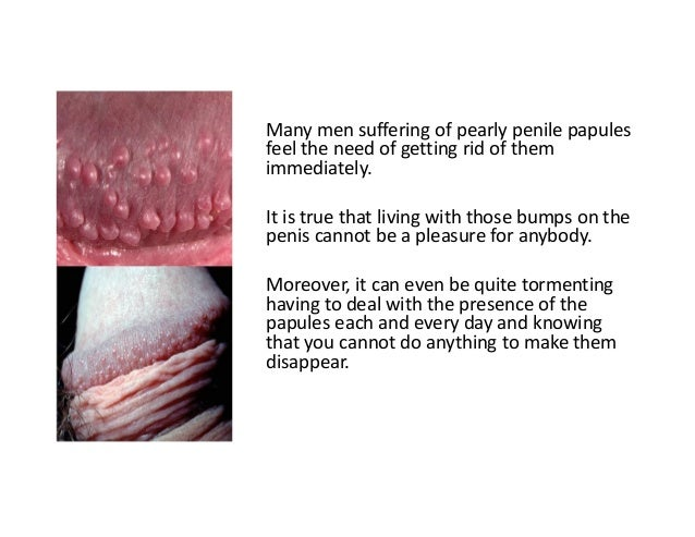 Go Papules Pearly Will Away Penile
