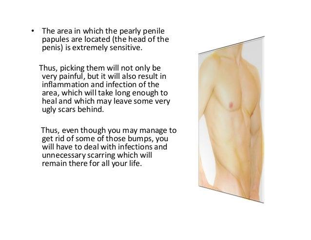 Small White Bumps Around Penis Head