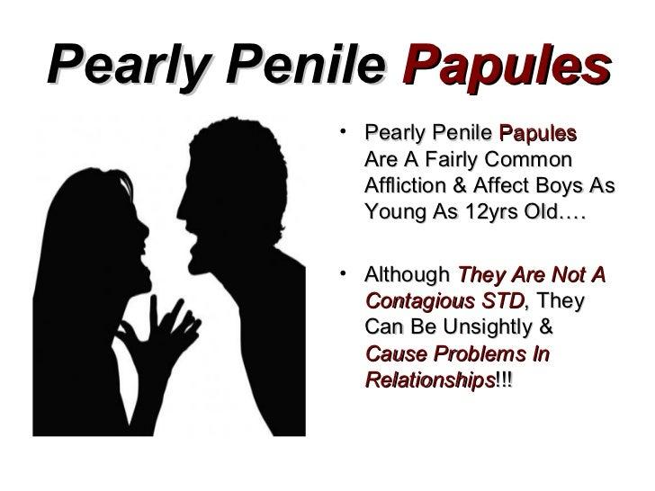 papules on penile head