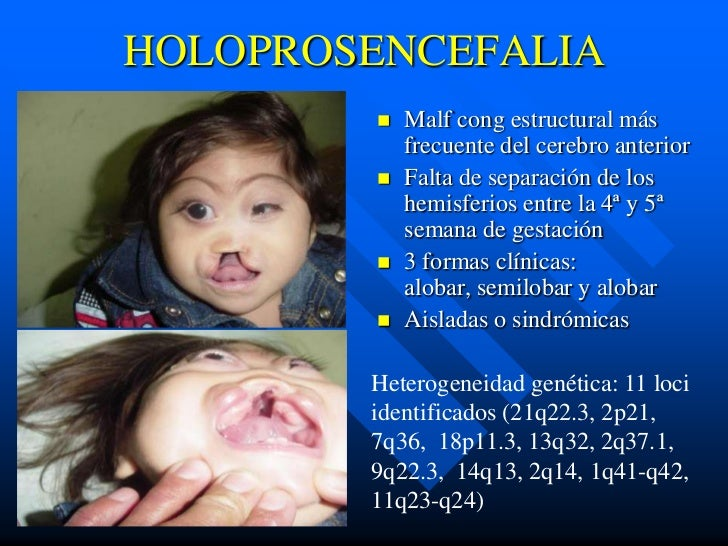 HOLOPROSENCEFALIA           Malf cong estructural más            frecuente del cerebro anterior           Falta de separ...