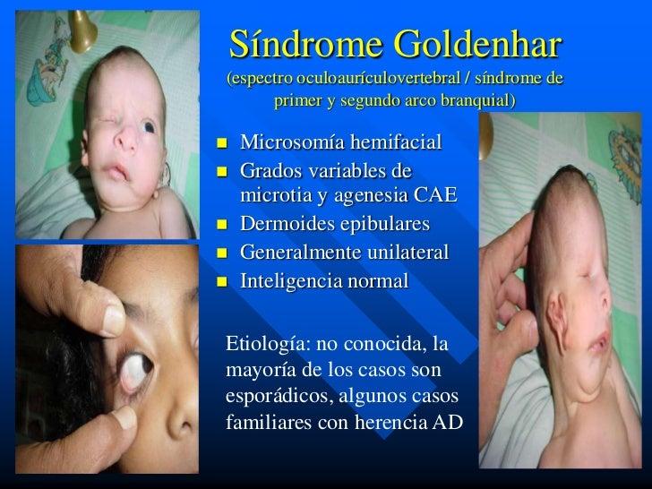 Síndrome Goldenhar(espectro oculoaurículovertebral / síndrome de      primer y segundo arco branquial)   Microsomía hemif...