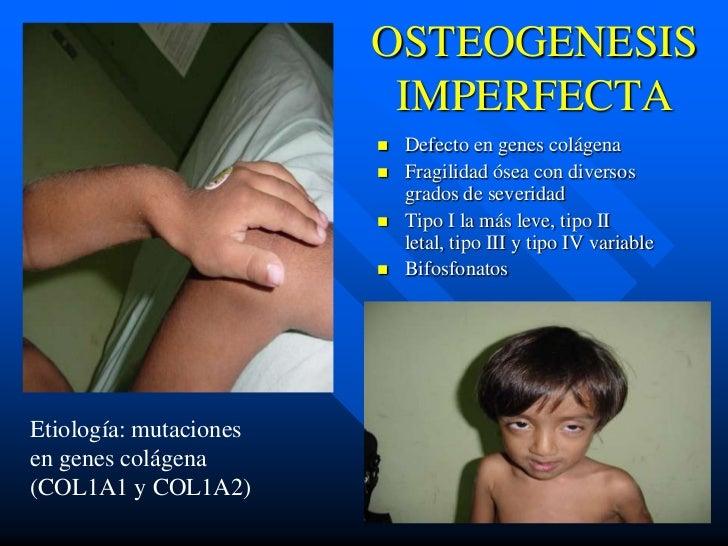OSTEOGENESIS                         IMPERFECTA                           Defecto en genes colágena                      ...