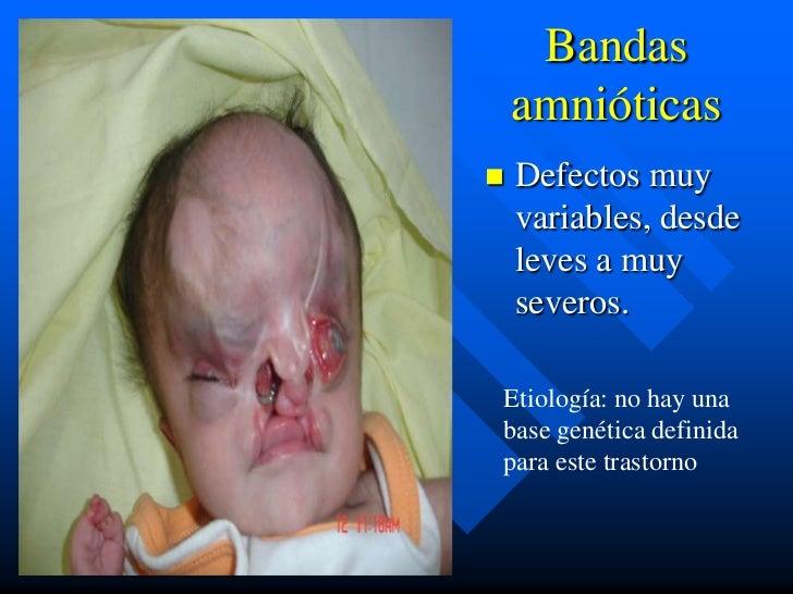 Bandas    amnióticas   Defectos muy    variables, desde    leves a muy    severos.Etiología: no hay unabase genética defi...