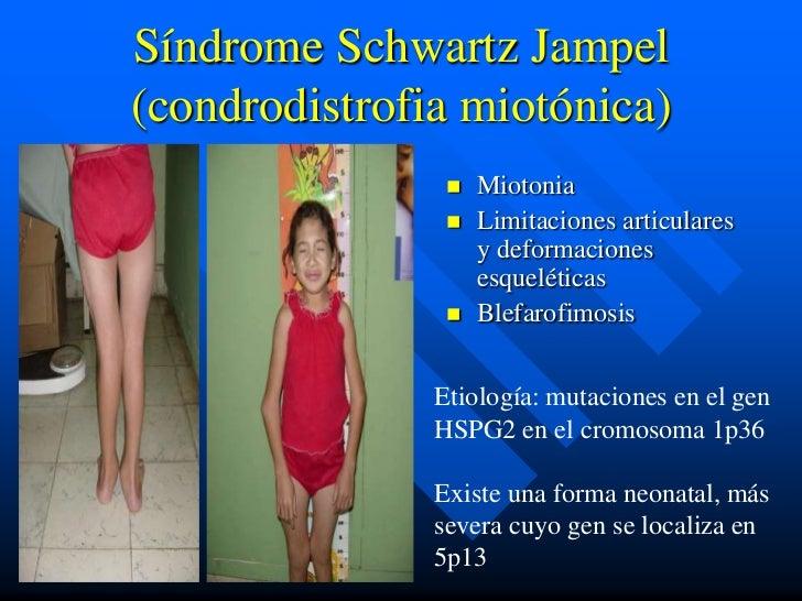 Síndrome Schwartz Jampel(condrodistrofia miotónica)                   Miotonia                   Limitaciones articulare...
