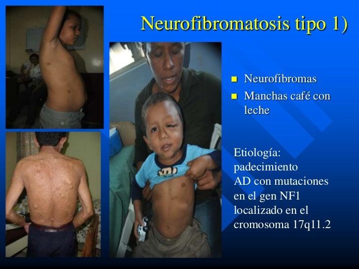 Neurofibromatosis tipo 1)             Neurofibromas             Manchas café con              leche           Etiología:...