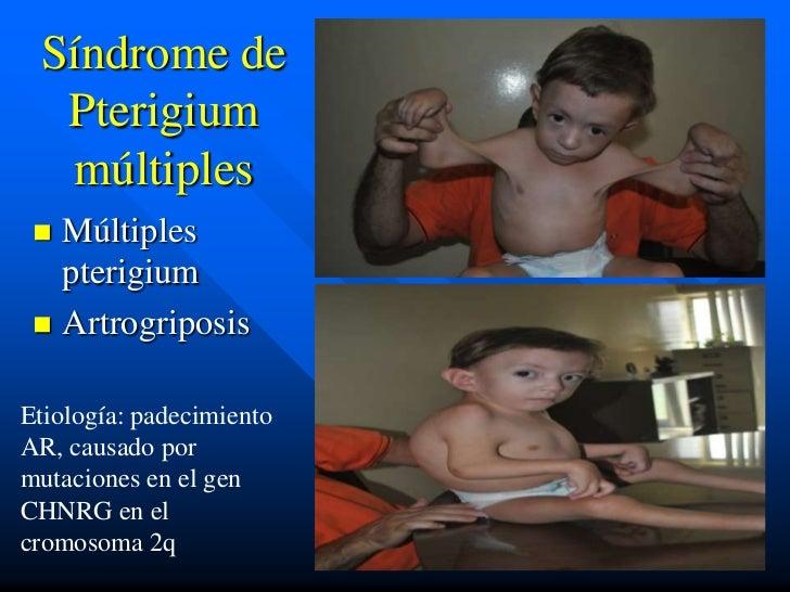 Síndrome de  Pterigium  múltiples  Múltiples   pterigium  ArtrogriposisEtiología: padecimientoAR, causado pormutaciones ...