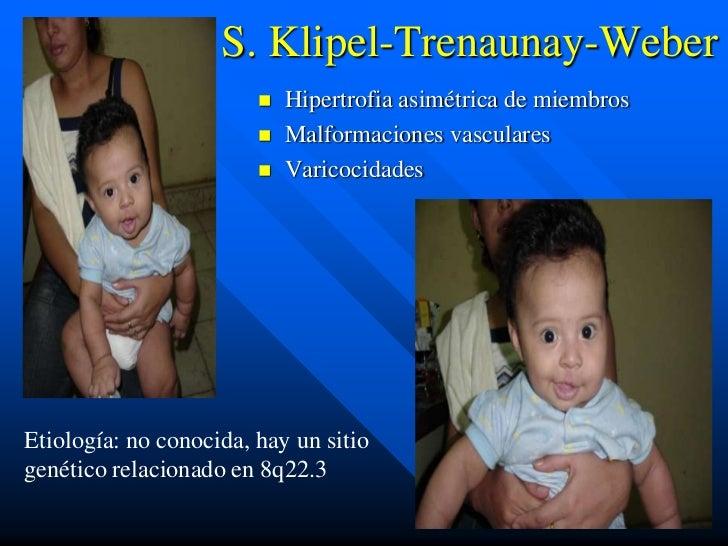 S. Klipel-Trenaunay-Weber                           Hipertrofia asimétrica de miembros                           Malform...