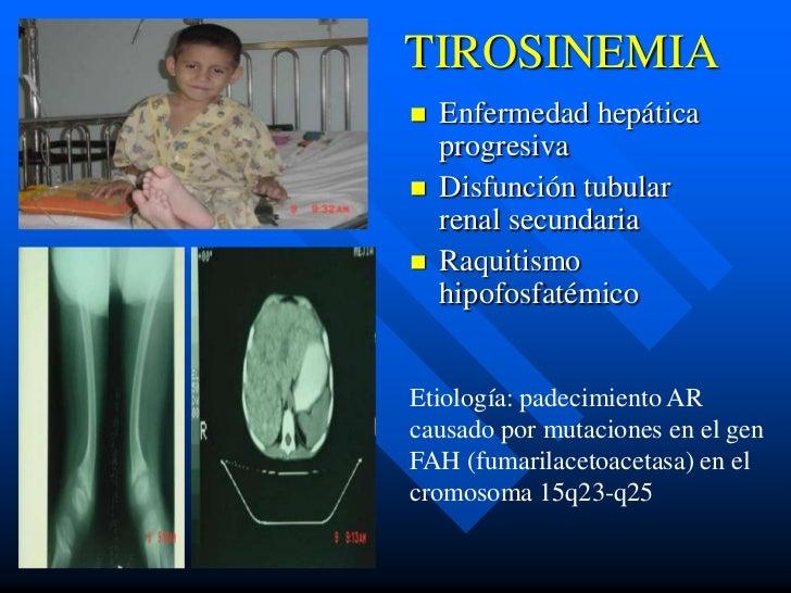 TIROSINEMIA   Enfermedad hepática    progresiva   Disfunción tubular    renal secundaria   Raquitismo    hipofosfatémic...