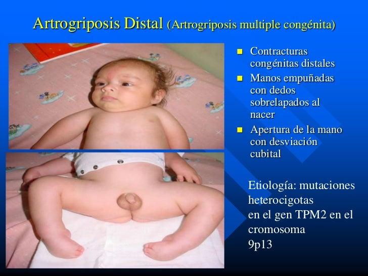 Artrogriposis Distal (Artrogriposis multiple congénita)                                        Contracturas              ...