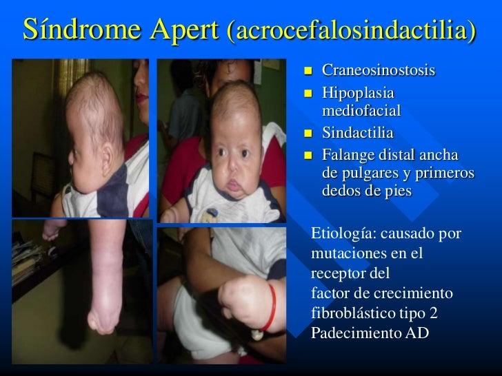 Síndrome Apert (acrocefalosindactilia)                          Craneosinostosis                          Hipoplasia    ...