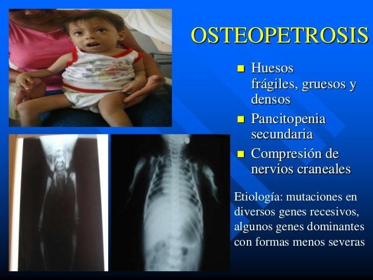 OSTEOPETROSIS      Huesos       frágiles, gruesos y       densos      Pancitopenia       secundaria      Compresión de ...