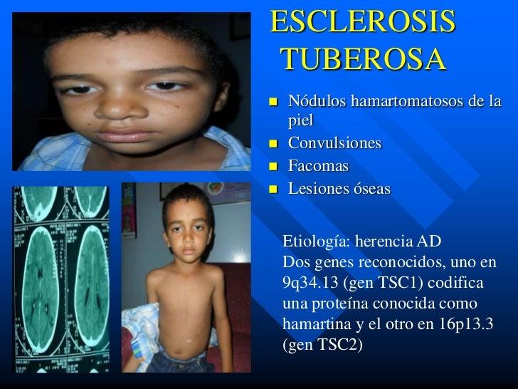 ESCLEROSISTUBEROSA   Nódulos hamartomatosos de la    piel   Convulsiones   Facomas   Lesiones óseas    Etiología: here...