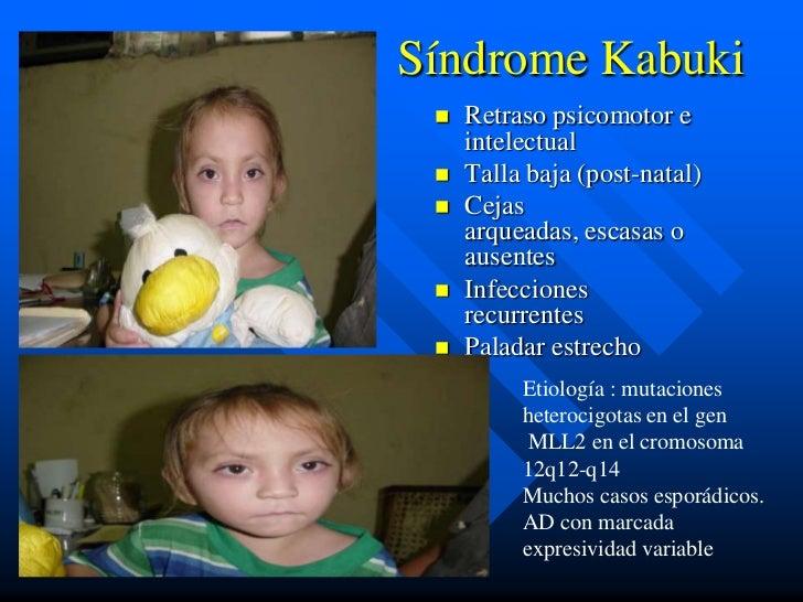 Síndrome Kabuki    Retraso psicomotor e     intelectual    Talla baja (post-natal)    Cejas     arqueadas, escasas o   ...